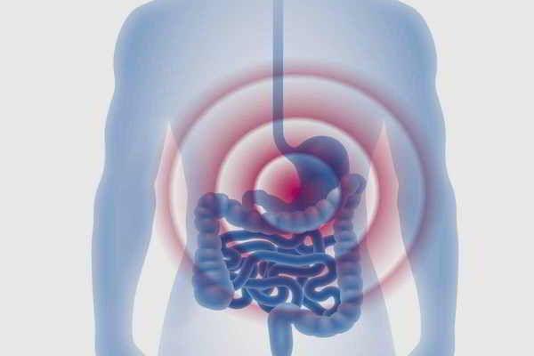Kuhmilchallergie: Funktionelle gastrointestinale Beschwerden