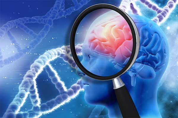 Workshop Epilepsie und Parkinson – Über Kognition und Fluktuationen