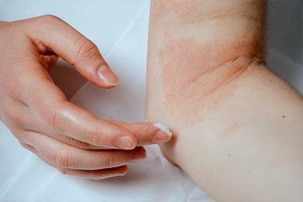 Übersicht Faktoren und Wirkungsmechanismen beruflicher Kontaktallergien