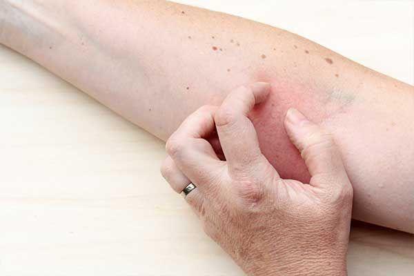 Atopische Dermatitis und psychosoziale Komorbiditäten – Was gibt's Neues?