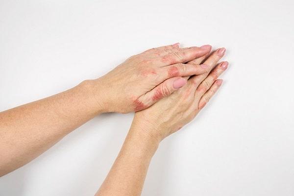 Januskinaseinhibitoren zur Therapie der atopischen Dermatitis