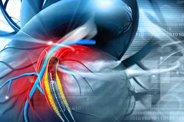 CME Online Fortbildung Ärzte  | Pulmonale Hypertonie aus pneumologischer und kardiologischer Sicht