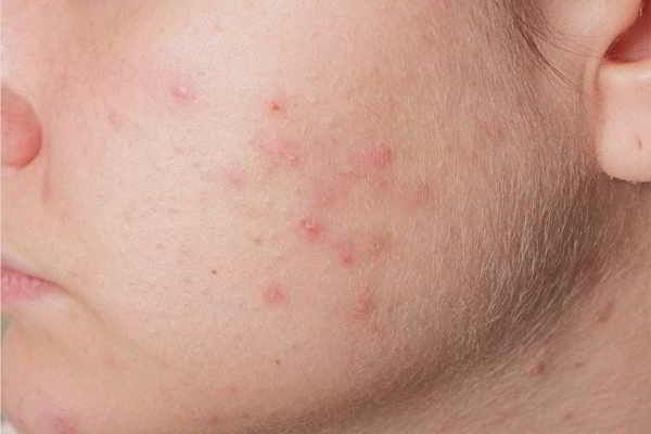 Atopische Dermatitis: Von der Diagnose zur Therapie