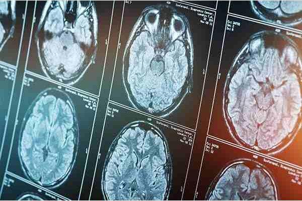 Idiopathisches Parkinson-Syndrom – Neue Aspekte zu Ätiologie und Pathophysiologie