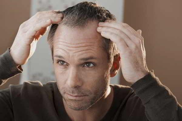 Kompetente Beratung in der Apotheke zu Haarausfall (Alopezie) – Ursachen und Therapie